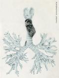 Arbol bronquial.La otra anatomia
